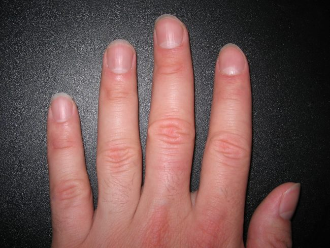 meaning of your fingernails palmistry free
